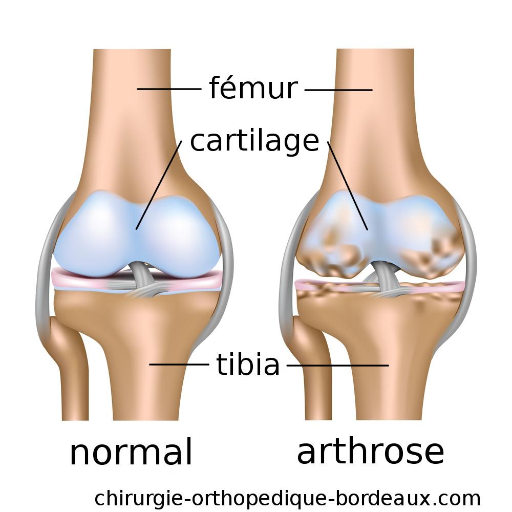 Les signes de l'arthrose